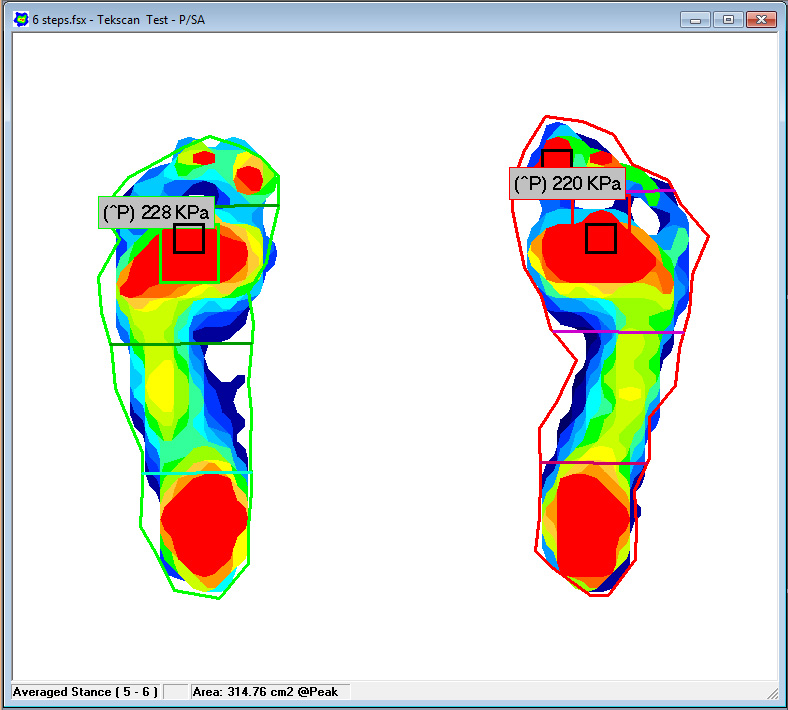 Tekscan software allows you to segment the foot for a more detailed foot function analysis and identifies the area of highest pressure.