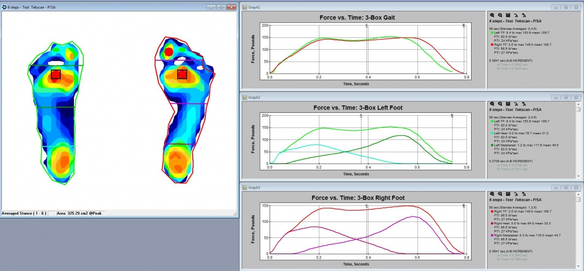 FootMat Software 3-Box protocol. Click to enlarge.