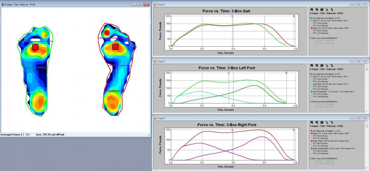 foot balance machine