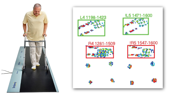 Data shown here is from a patient with a walking assistive device (quad cane). The software auto identifies foot strikes and disregards the pressure from the cane.