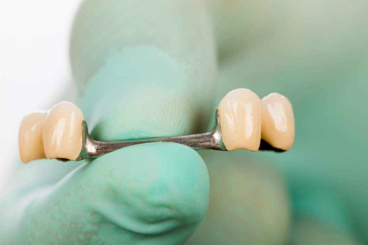 T-Scan is used to give dentists data that reveals the occlusal dynamics of the bite to ensure the longevity of prosthetic work