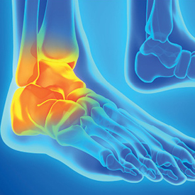 New Technology for Objective Assessment of Chronic Ankle Instability