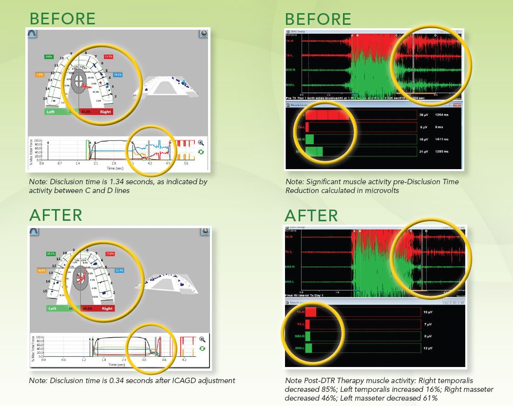 DTR Therapy software images: Before and After treatment