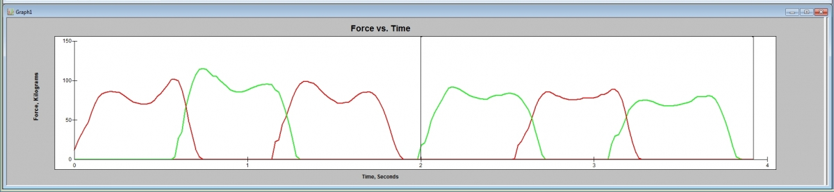 Force vs. Time curves reveal the foot loading patterns of both the right and left feet.