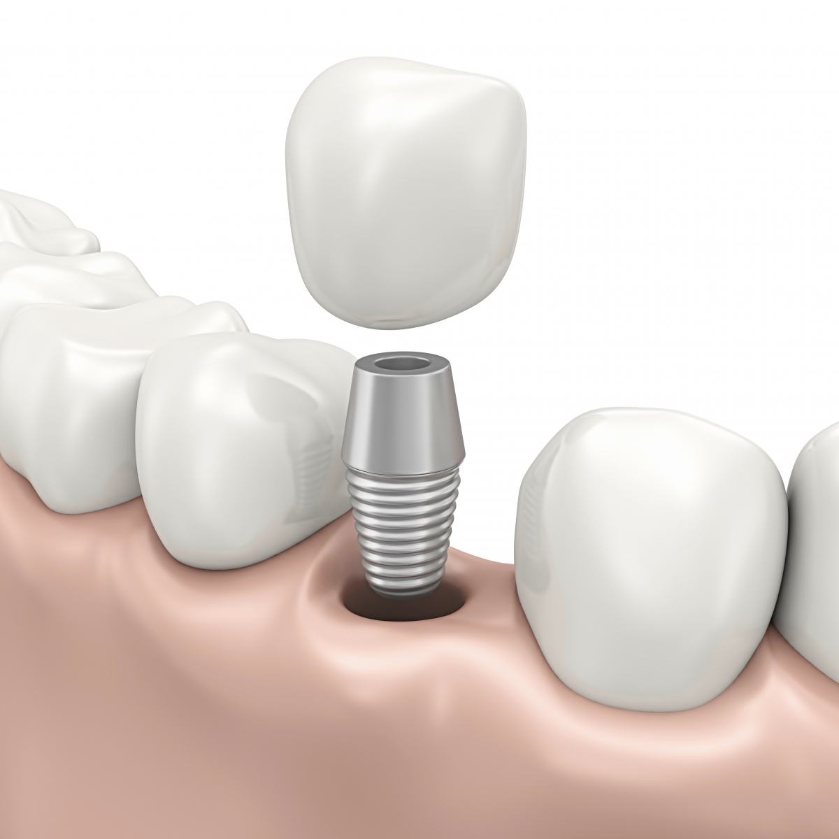 Dentists use T-Scan to ensure proper implant loading