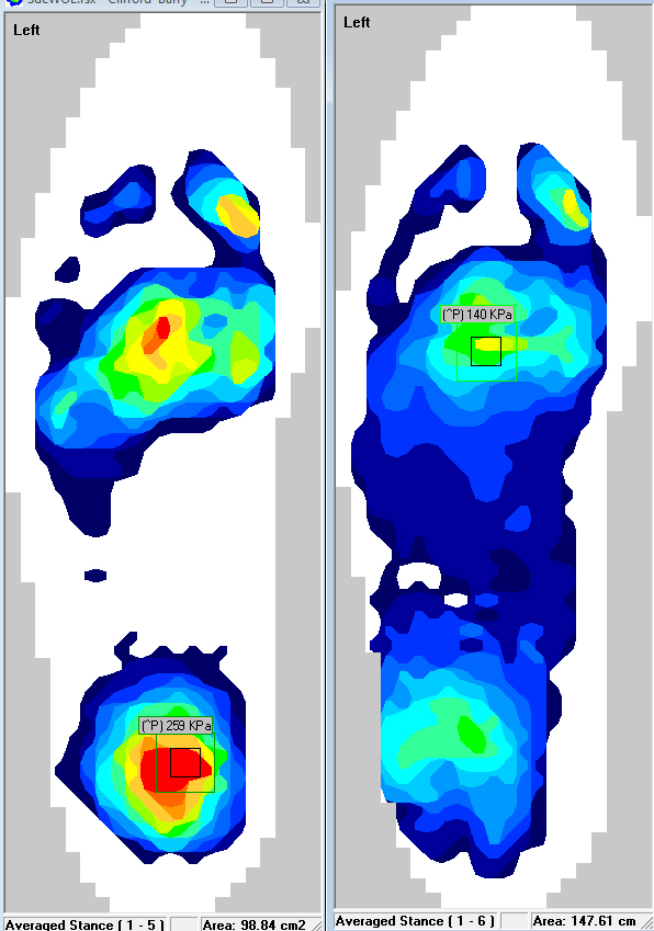 Insights from F-Scan Software: Notice that the peak pressure from the image on the left (pre-orthotic) have been significantly decreased to the image on the right (with the orthotic).