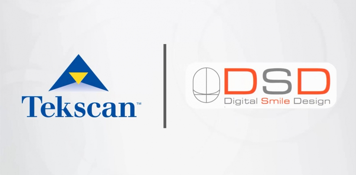 Tekscan and Digital Smile Design