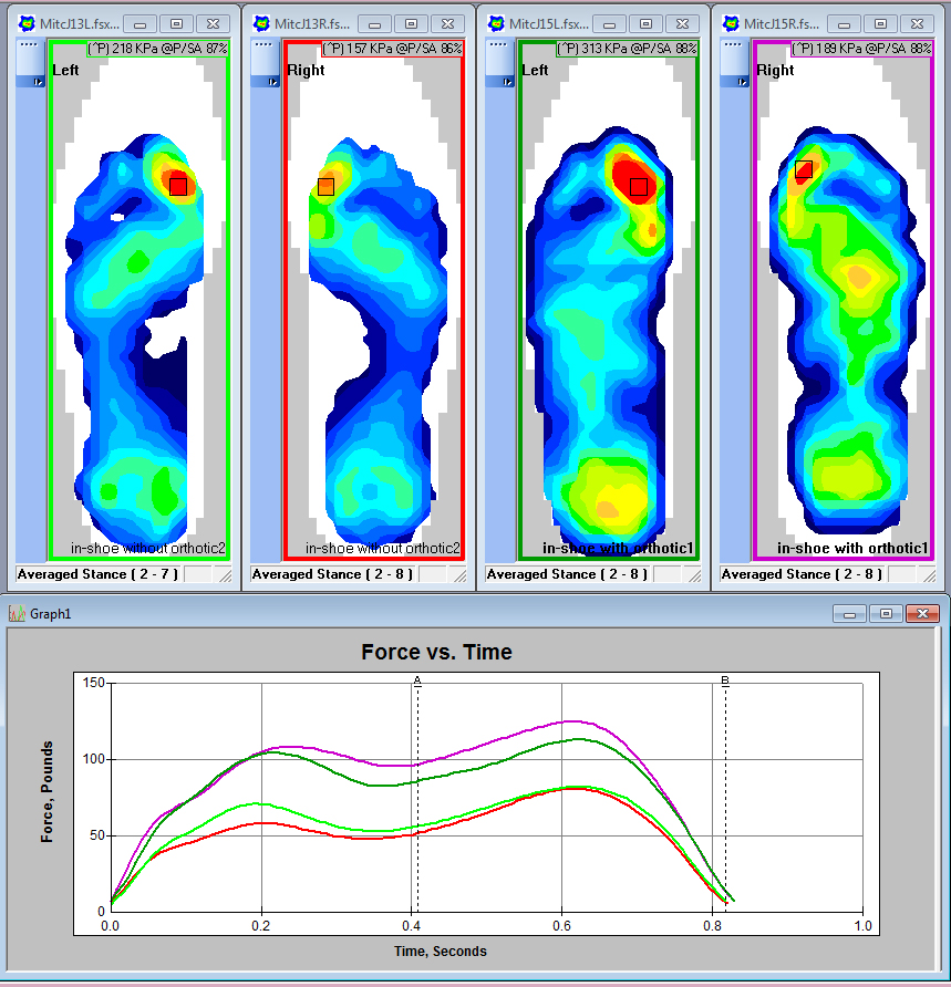 Compare differences between orthotics and various materials with Tekscan's in-shoe analysis system.