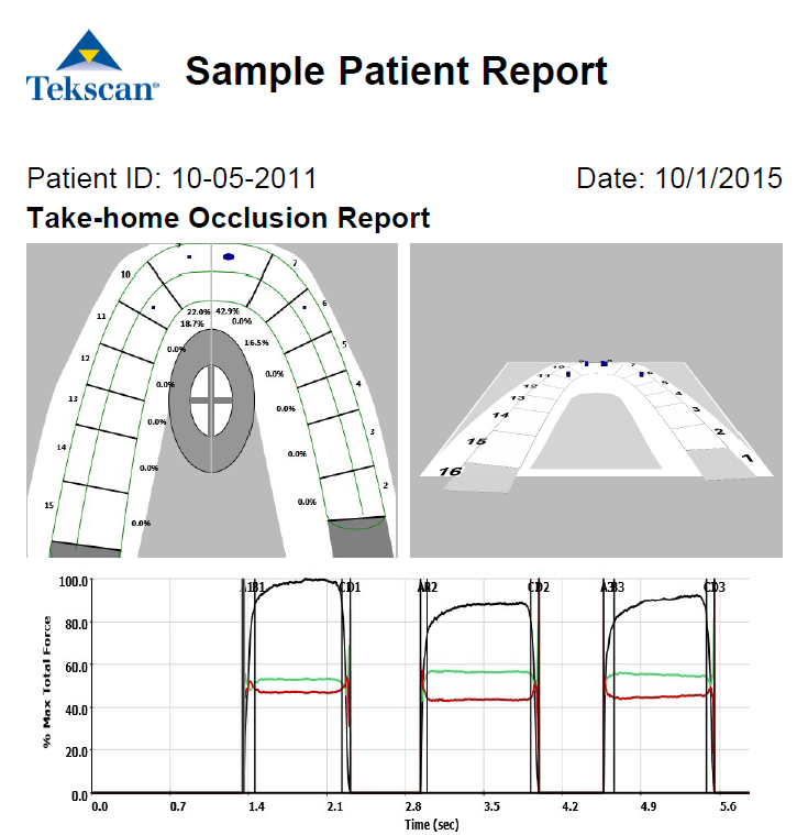 Example of a report generated by T-Scan software. Great for patients to take home after their bite is evaluated using T-Scan