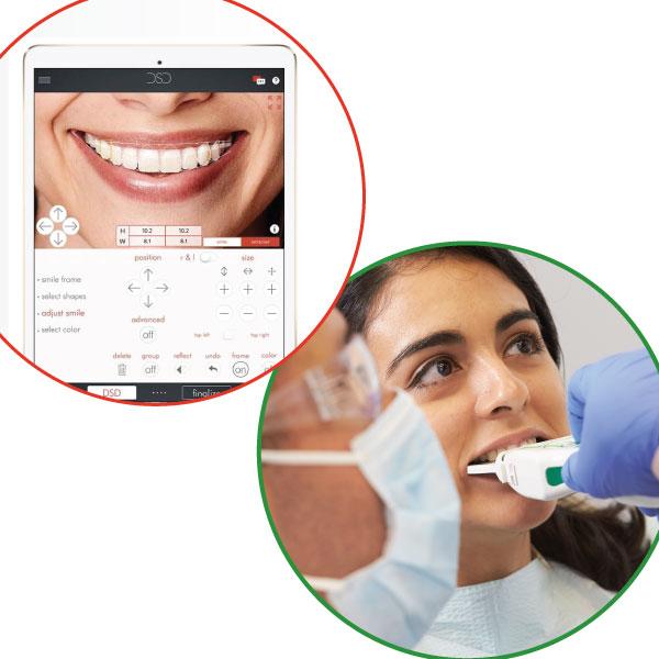 T Scan And Digital Smile Design Tekscan