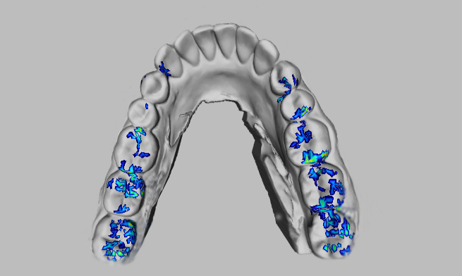 T-Scan 9.0 allows you to import digital impressions from intraoral scanners
