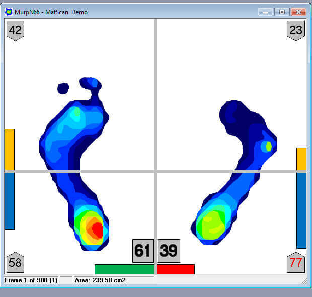 Quickly & easily evaluate stability with instant weight bearing insights.