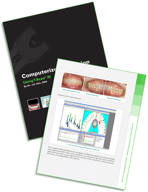 Dental Scanning eBook - Computerized Occlusion: Using T-Scan