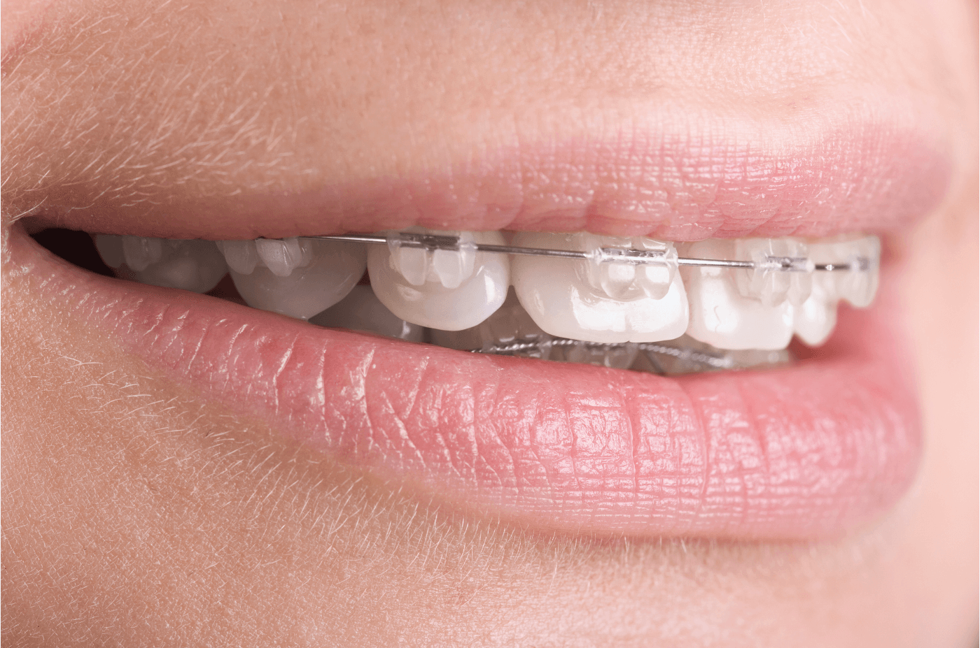 New study uses t scan technology to reveal orthodontias impact on new study uses t scan technology to reveal orthodontias impact on the bite tekscan ccuart Choice Image