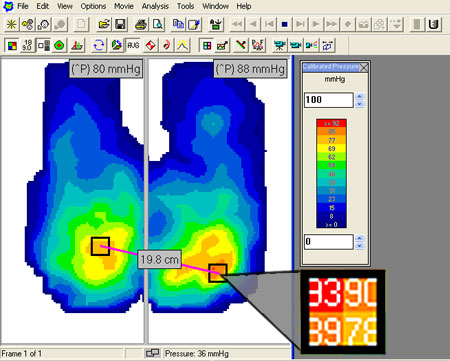 With CONFORMat software easily identify high pressure areas (in red) and view peak pressure (^P)