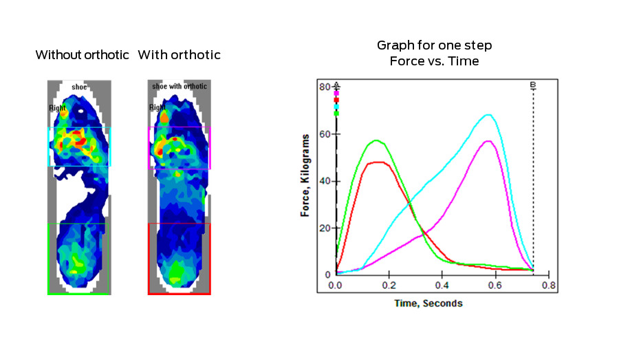 Figure 5 - Force versus time curves and pressure profiles for the same right foot before and after treatment, except the foot is broken down into a forefoot and heel segmentation. Differences in both heel and forefoot force/time curves are now much more apparent