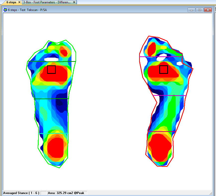 Tekscan software allows you to segment the foot for a more detailed foot function analysis.