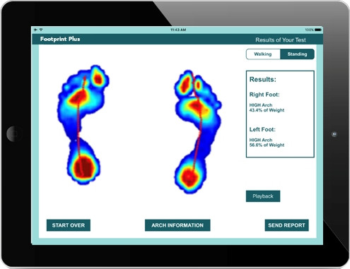 Retail Foot Mapping | Tekscan