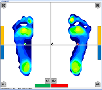 Easily identify asymmetries in weight bearing.