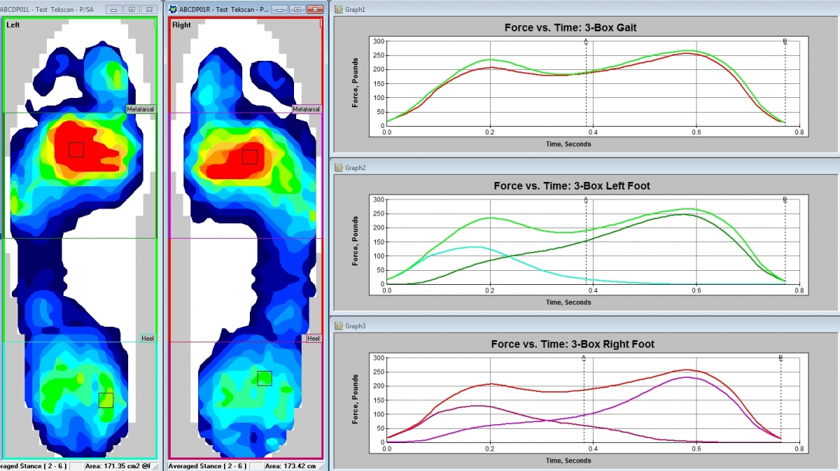 The F-Scan System provides detailed information for a complete gait analysis.