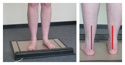 Lower Limb Alignment