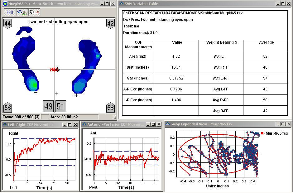 SAM software displays pressure profiles along with Center of Force movement and the sway ellipse.