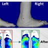 offloading a charcot foot deformity with f-scan system