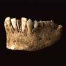 [Ancient dental implants]