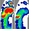 Dr. Rion Berg of Seattle Washington shares how he uses F-Scan to evaluate foot ulcers.