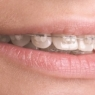 T-Scan Orthodontics