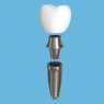t-scan for dental implant prosthesis
