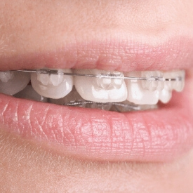 Dental Occlusion of Post-Orthodontic and Non-Orthodontic Subjects Studied