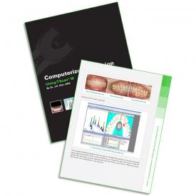 Computerized Occlusion: Using T-Scan III eBook