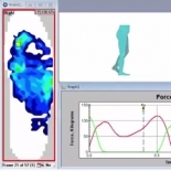 F-Scan & the Gait Cycle Video