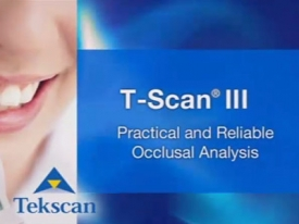T-Scan: Practical and Reliable Occlusal Analysis