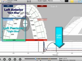 T-Scan Training Level 1 Video: Graphs