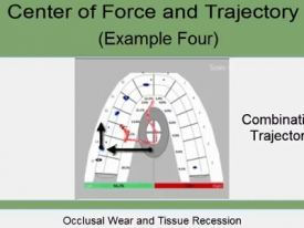 T-Scan Training Level 2 Video: Evaluating Excursions Part II