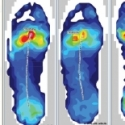 Validating Orthotic Interventions with F-Scan
