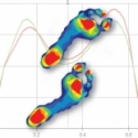 How Pressure Mapping Complements Force Measurement in Gait Analysis