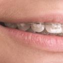 T-Scan Orthodontics