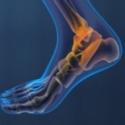Gait Analysis & Foot Function