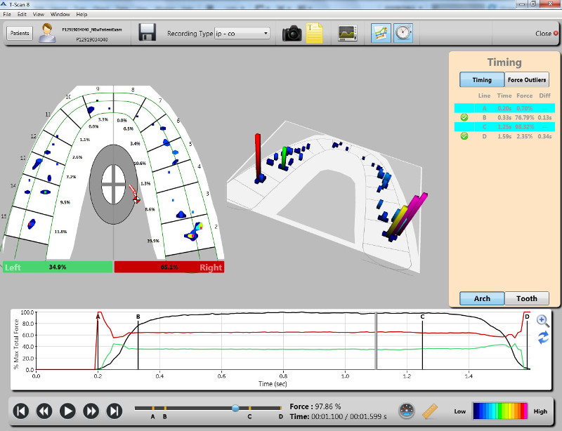 T-Scan Digital Occlusal Analysis Software