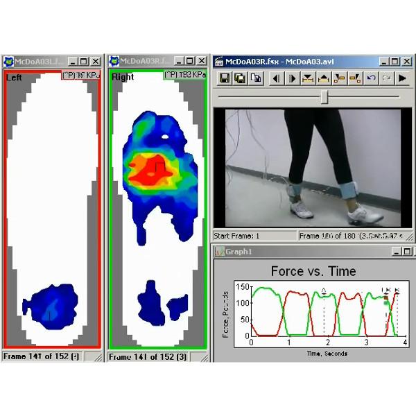 Video Synchronization Software Module add-on | Tekscan